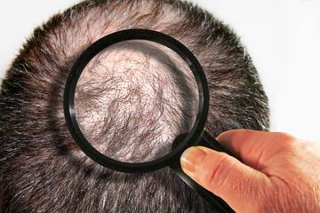 Alopecia Androgenetica: 7 Step Per Riconoscerla