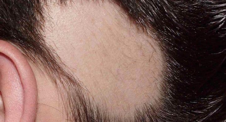 Trapianto Capelli E Alopecia Areata