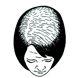 Calvizie Femminile – Grado 02