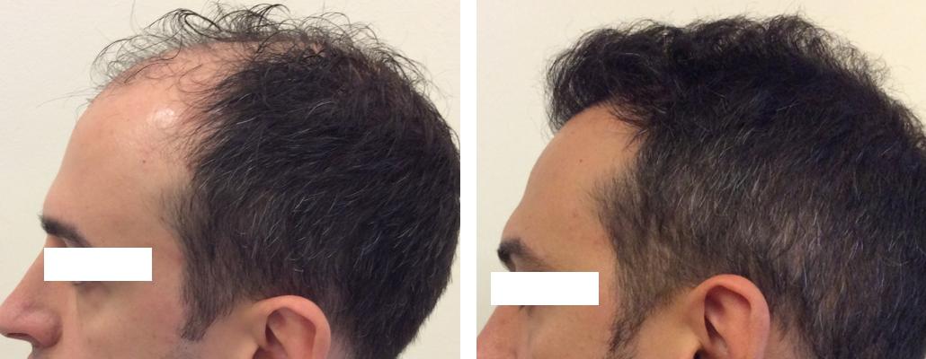 Foto Trapianto Capelli: Alopecia