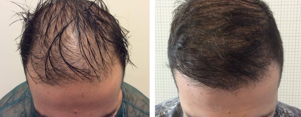 trapianto capelli foto 15