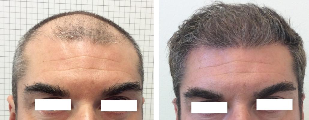 trapianto capelli foto 17