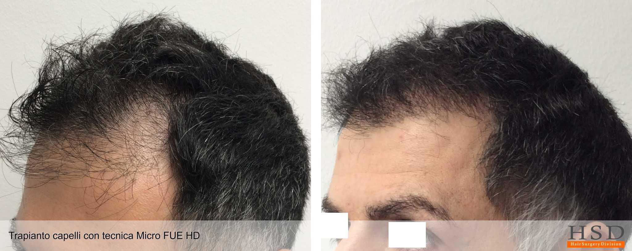 Tecnica FUE di trapianto capelli della HSD