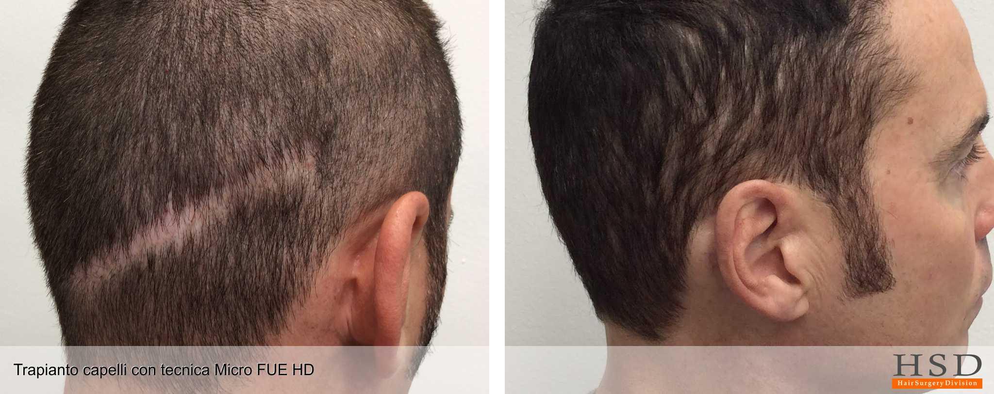 Trapianto capelli: Fa male?