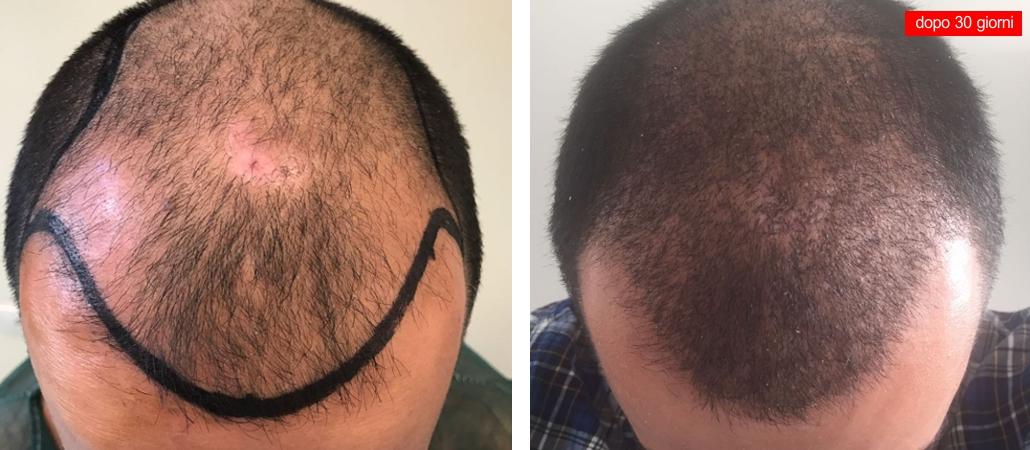 Risposte di maschere nazionali per crescita di capelli