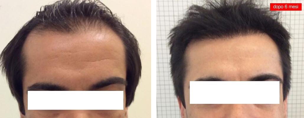Trapianto capelli foto stempiatura e diradamento frontale