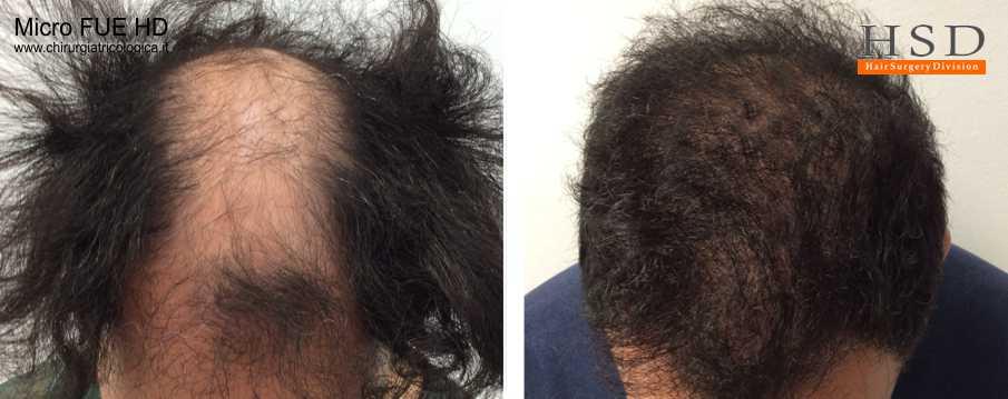 Trapianto capelli FUE - Esempio 1001