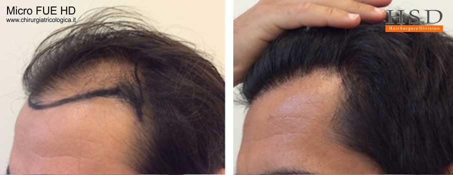 Trapianto capelli ad alta densità