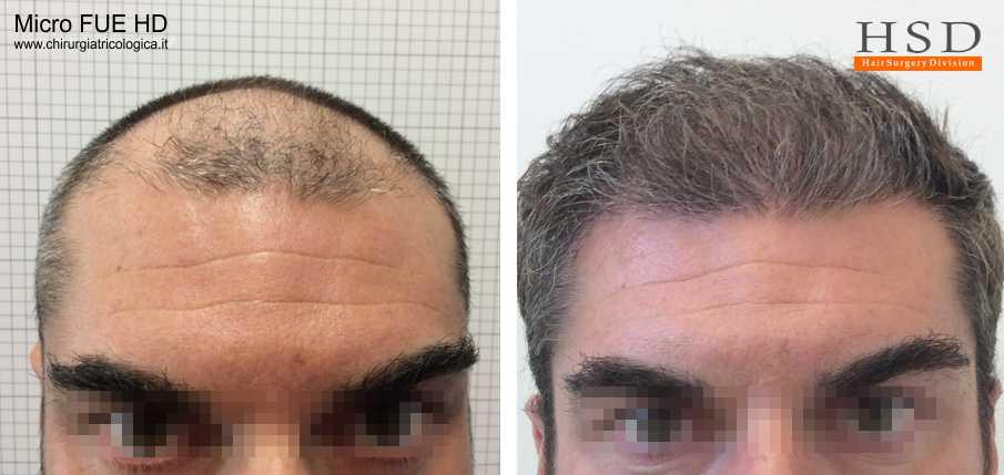 Trapianto capelli frontale