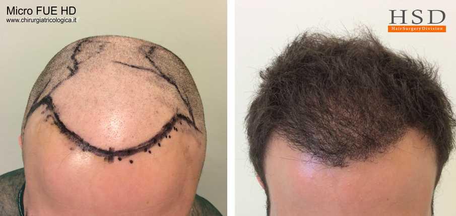Esempio 12 : trapianto capelli fue