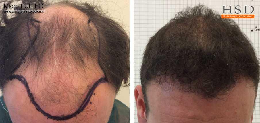 Esempio 14 : trapianto capelli fue