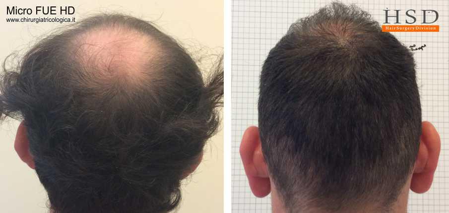 Esempio 15 : trapianto capelli fue