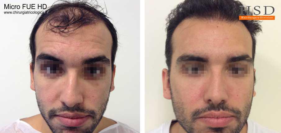 Esempio 16 : trapianto capelli fue