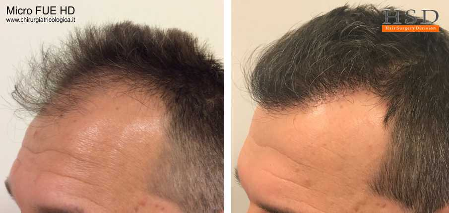 Esempio 17 : trapianto capelli fue