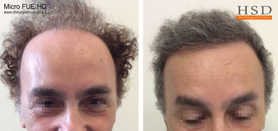 Esempio 22 : trapianto capelli fue
