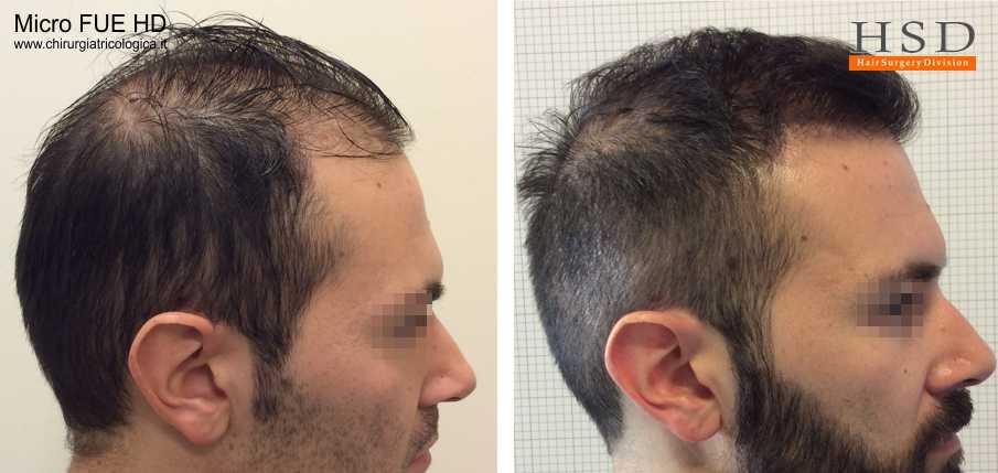 Esempio 24 : trapianto capelli stempiatura fue