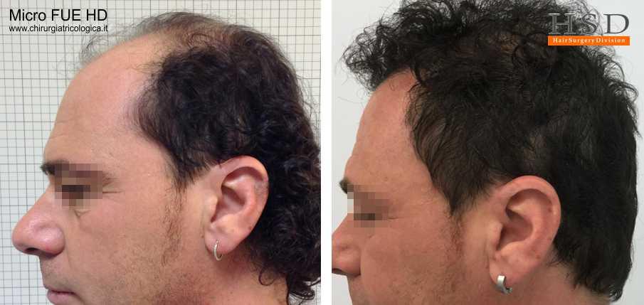 Trapianto capelli Micro FUE #37