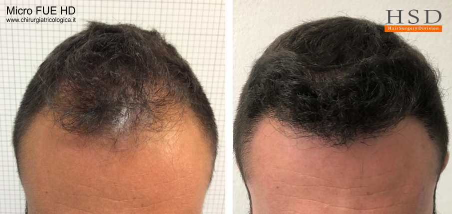 Trapianto capelli Micro FUE #40