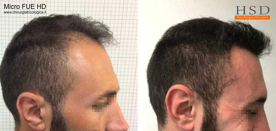 Trapianto capelli Micro FUE
