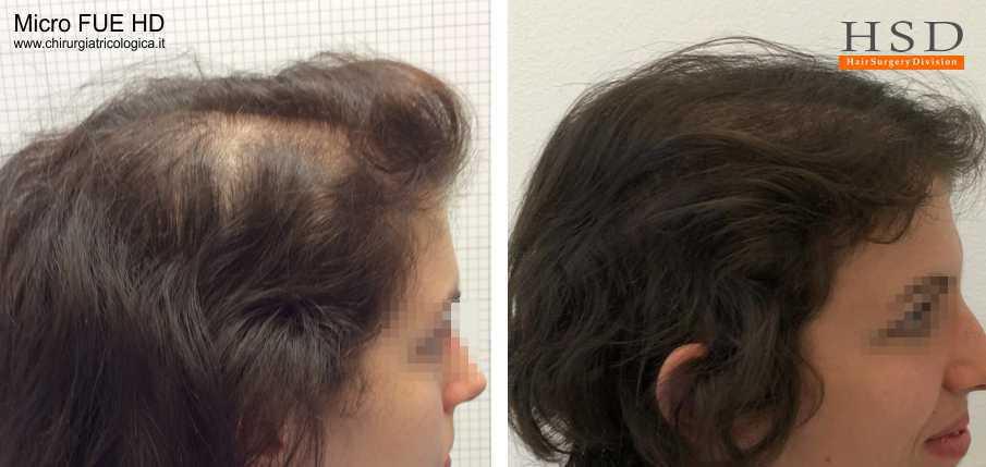 Trapianto capelli donna Micro FUE #47
