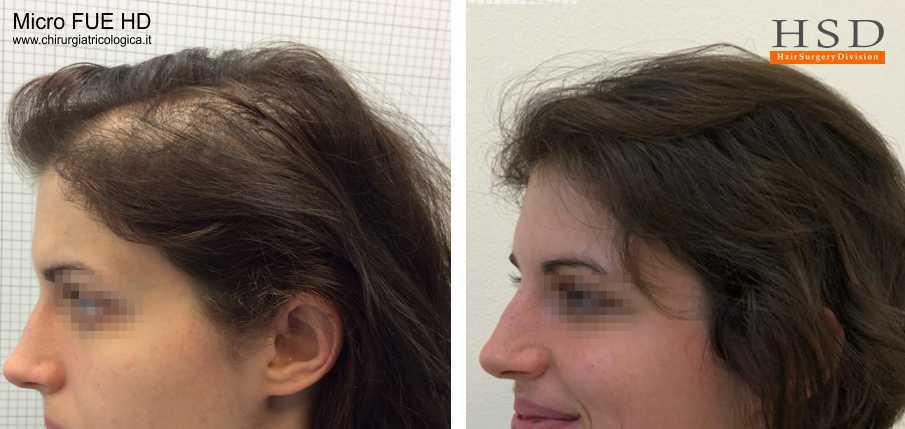 Trapianto capelli Bologna al femminile