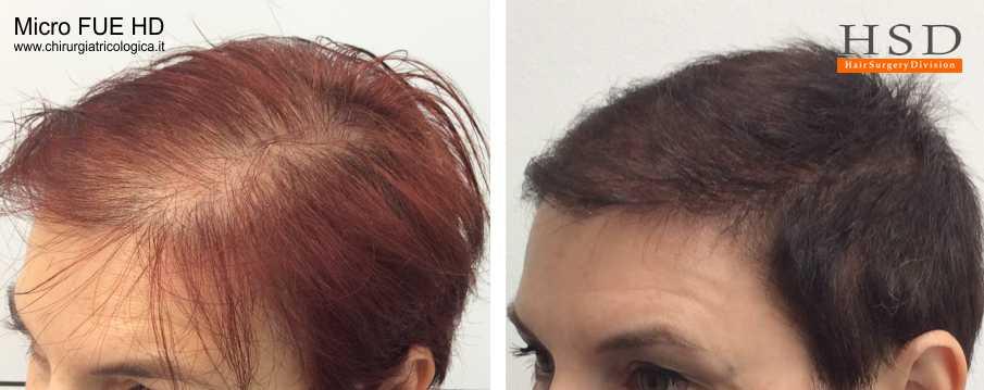 Trapianto capelli FUE - Esempio 501