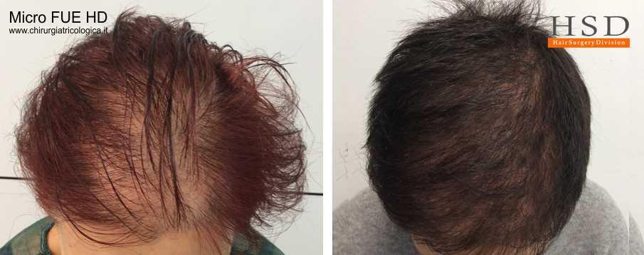 Trapianto capelli FUE - Esempio 502