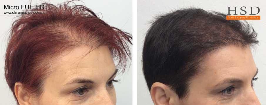 Trapianto capelli FUE - Esempio 503