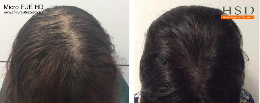 Trapianto capelli FUE - Esempio 601