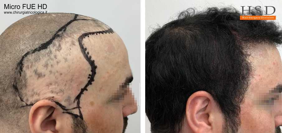 Trapianto capelli Micro FUE #61