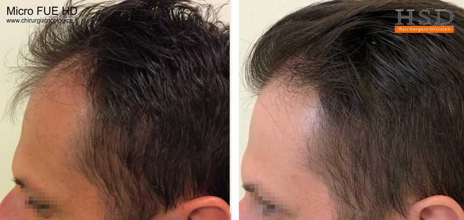 Trapianto capelli Bologna, le tecnica Micro FUE è la decisione ottimale per chi desidera un risultato efficace in una seduta