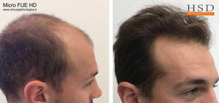 Trapianto capelli FUE - Esempio 72