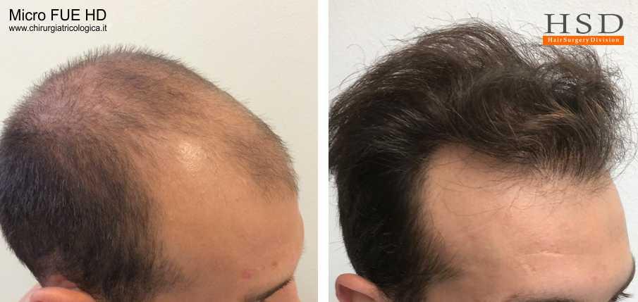 Trapianto capelli FUE - Esempio 73
