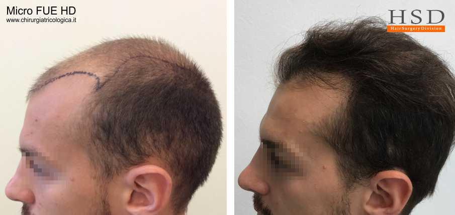 Trapianto capelli FUE - Esempio 74