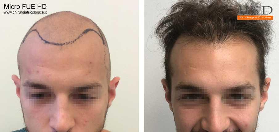 Trapianto capelli FUE - Esempio 75