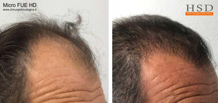 Trapianto capelli FUE - Esempio 76