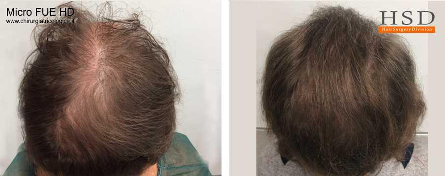 Trapianto capelli FUE - Esempio 905