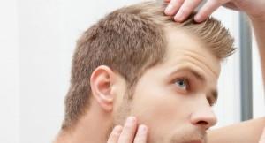 Calvizie maschile età: Perdere i capelli a 18 anni