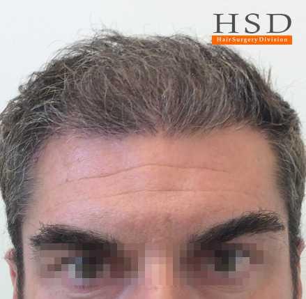 trapianto capelli prima dopo 003 dopo