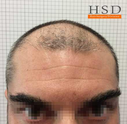 trapianto capelli prima dopo 003 prima
