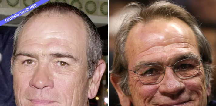 Trapianto Capelli VIP Tommy Lee Jones