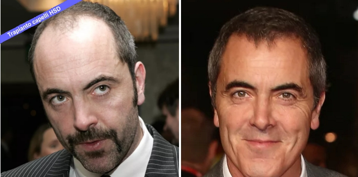 Trapianto Capelli VIP  James Nesbitt