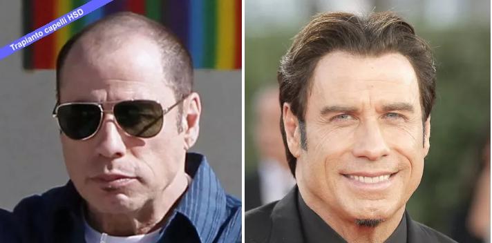 Trapianto Capelli VIP John Travolta