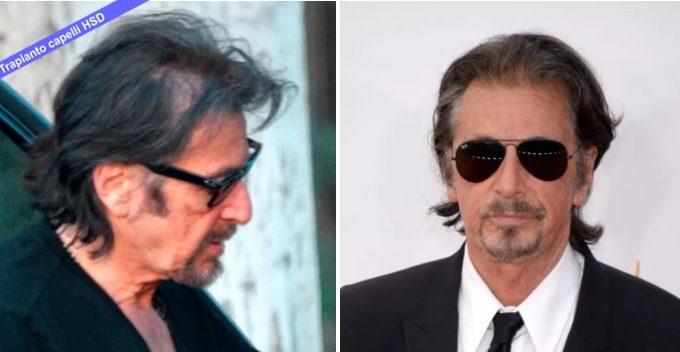 Trapianto Capelli VIP Al Pacino