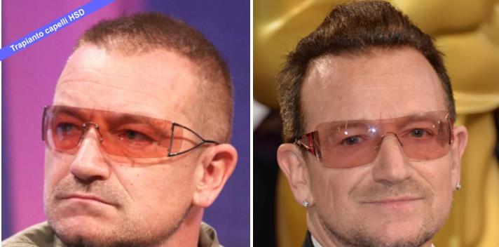 Trapianto Capelli VIP Bono