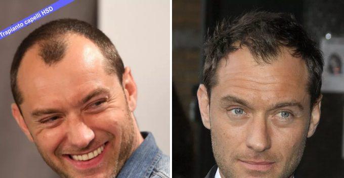 Trapianto Capelli VIP Jude Law