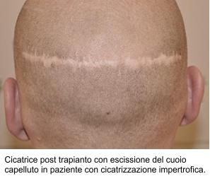 Cicatrice post trapianto con escissione del cuoio