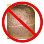 Trapianto capelli cicatrici