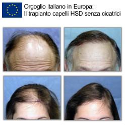 Trapianto capelli migliore in italia